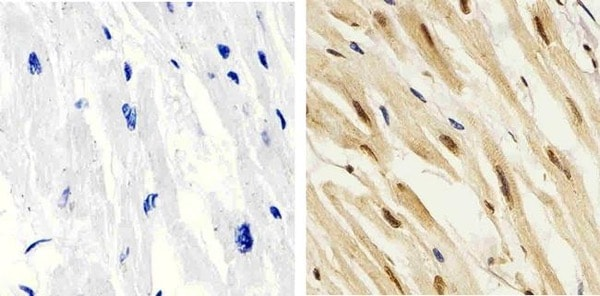Immunohistochemistry (Formalin/PFA-fixed paraffin-embedded sections) - Anti-p38 (phospho T180 + Y182) antibody (ab4822)