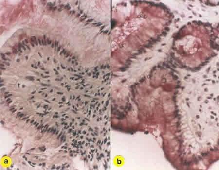 Immunohistochemistry (Formalin/PFA-fixed paraffin-embedded sections) - Anti-Phospholipase C gamma 1/PLC-gamma-1 (phospho Y783) antibody (ab4828)