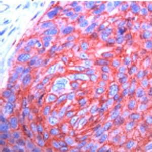 Immunohistochemistry (Formalin/PFA-fixed paraffin-embedded sections) - Anti-Glucose Transporter GLUT1 antibody [SPM498] (ab40084)