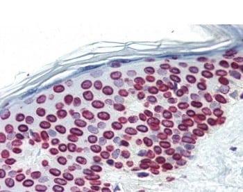 Immunohistochemistry (Formalin/PFA-fixed paraffin-embedded sections) - Anti-Lamin A + Lamin C antibody [JOL2] (ab40567)