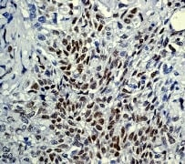 Immunohistochemistry (Formalin/PFA-fixed paraffin-embedded sections) - Anti-p73 antibody [EP436Y] (ab40658)