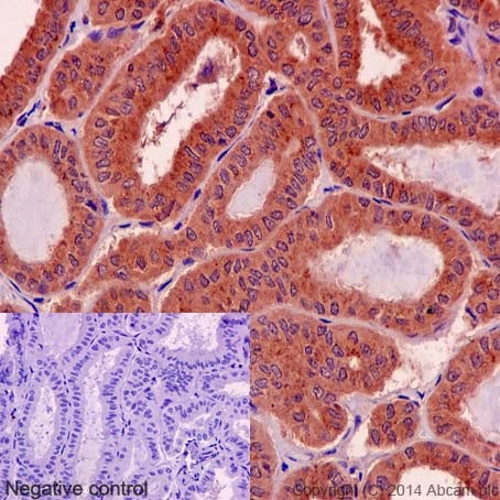 Immunohistochemistry (Formalin/PFA-fixed paraffin-embedded sections) - Anti-Rho antibody [EP487Y] (ab40673)