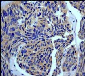 Immunohistochemistry - Anti-Rho antibody [EP487Y] (ab40673)