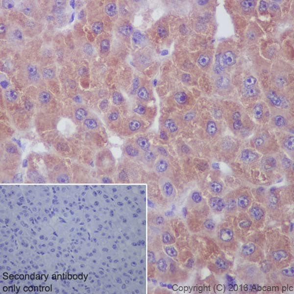 Immunohistochemistry (Formalin/PFA-fixed paraffin-embedded sections) - Anti-NAK/TBK1 antibody [EP611Y] (ab40676)
