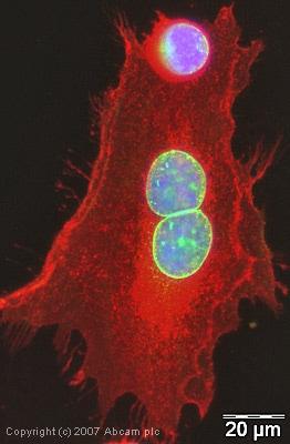Immunocytochemistry/ Immunofluorescence - Anti-Emerin antibody (ab40688)