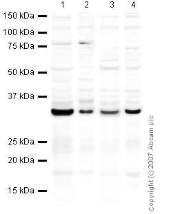 Western blot - Anti-Emerin antibody (ab40688)