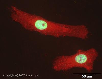 Immunocytochemistry/ Immunofluorescence - Anti-U1A antibody (ab40689)