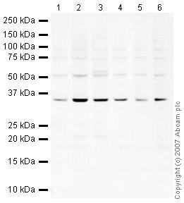 Western blot - Anti-U1A antibody (ab40689)