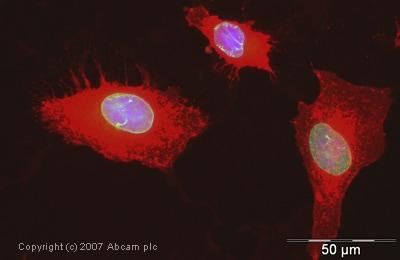 Immunocytochemistry/ Immunofluorescence - Anti-Emerin antibody (ab40725)