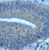 Immunohistochemistry (Formalin/PFA-fixed paraffin-embedded sections) - Anti-Bcl10 antibody [ep605y] (ab40752)