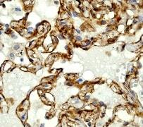 Immunohistochemistry (Formalin/PFA-fixed paraffin-embedded sections) - Anti-alpha Adducin antibody [EP734Y] (ab40760)