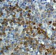Immunohistochemistry (Formalin/PFA-fixed paraffin-embedded sections) - Anti-EEF2 antibody [EP723Y] (ab40762)