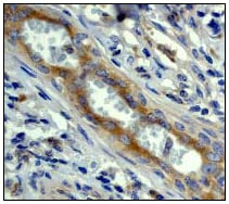 Immunohistochemistry (Formalin/PFA-fixed paraffin-embedded sections) - Anti-CAD/BM1 antibody [EP711Y] (ab40765)