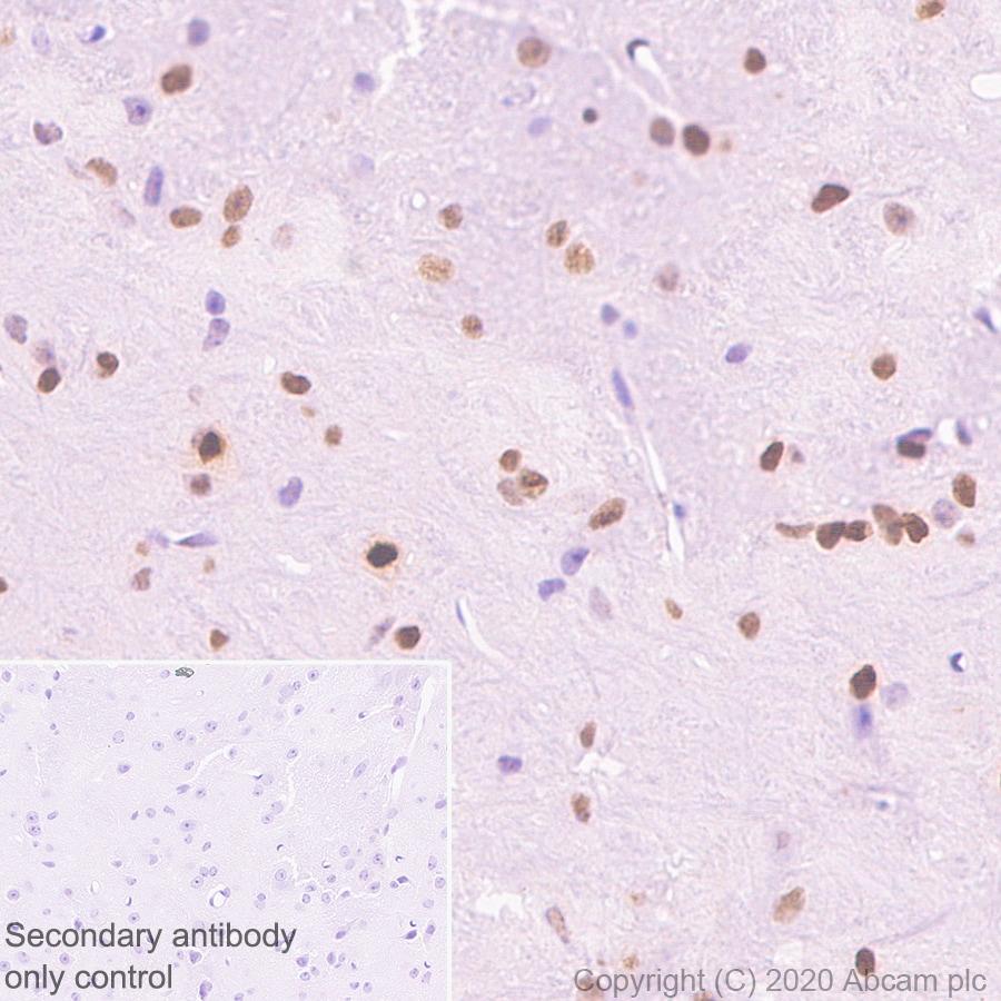 Immunohistochemistry (Formalin/PFA-fixed paraffin-embedded sections) - Anti-c-Jun antibody [EP693Y] (ab40766)
