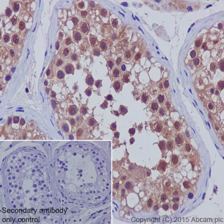 Immunohistochemistry (Formalin/PFA-fixed paraffin-embedded sections) - Anti-SMAD5 antibody [EP619Y] (ab40771)