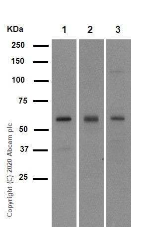 Western blot - Anti-SMAD5 antibody [EP619Y] (ab40771)
