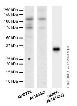 Western blot - Anti-E Cadherin antibody [EP700Y] - Intercellular Junction Marker (ab40772)