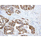 Immunohistochemistry (Formalin/PFA-fixed paraffin-embedded sections) - Anti-E Cadherin antibody [EP700Y] - Intercellular Junction Marker (ab40772)