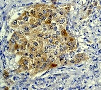 Immunohistochemistry (Formalin/PFA-fixed paraffin-embedded sections) - Anti-IRS1 antibody [EP263Y] (ab40777)