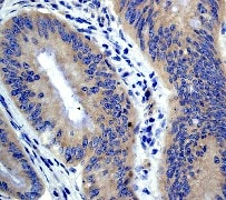 Immunohistochemistry (Formalin/PFA-fixed paraffin-embedded sections) - Anti-APC antibody [EP701Y] (ab40778)
