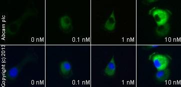 Immunocytochemistry/ Immunofluorescence - Anti-FAK antibody [EP695Y] (ab40794)