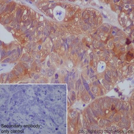 Immunohistochemistry (Formalin/PFA-fixed paraffin-embedded sections) - Anti-PAK1 (phospho S144) + PAK2 (phospho S141) + PAK3 (phospho S154) antibody [EP656Y] (ab40795)