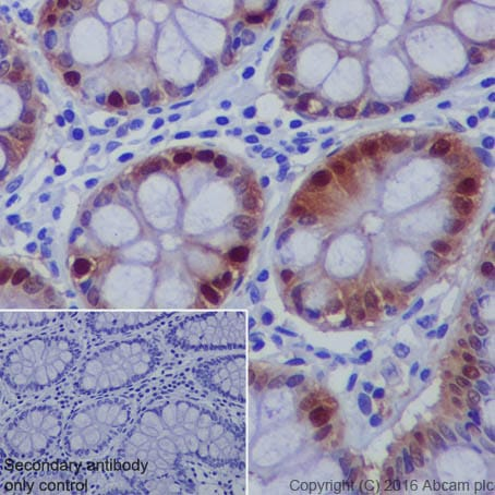 Immunohistochemistry (Formalin/PFA-fixed paraffin-embedded sections) - Anti-DARPP32 antibody [EP720Y] (ab40801)