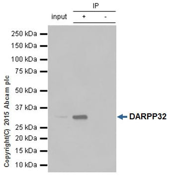 Immunoprecipitation - Anti-DARPP32 antibody [EP721Y] (ab40802)