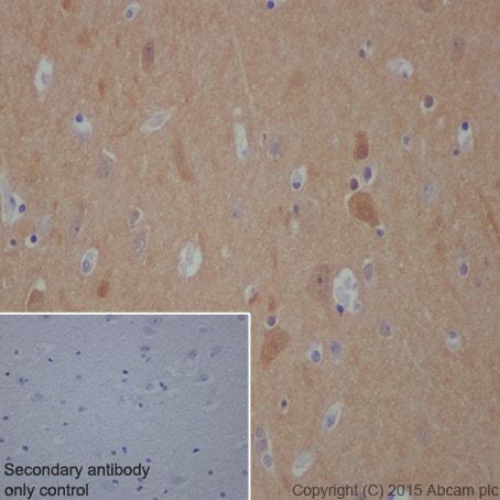Immunohistochemistry (Formalin/PFA-fixed paraffin-embedded sections) - Anti-DARPP32 antibody [EP721Y] (ab40802)
