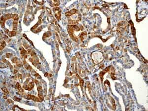 Immunohistochemistry (Formalin/PFA-fixed paraffin-embedded sections) - Anti-EGFR (phospho Y1068) antibody [EP774Y] (ab40815)