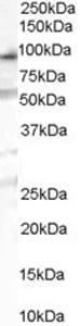 Western blot - Anti-OSBPL10 antibody (ab40824)