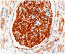 Immunohistochemistry (Formalin/PFA-fixed paraffin-embedded sections) - Anti-SLC9A3R2 antibody (ab40825)