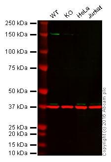 Western blot - Anti-MEK3 antibody [EP555Y] (ab40836)
