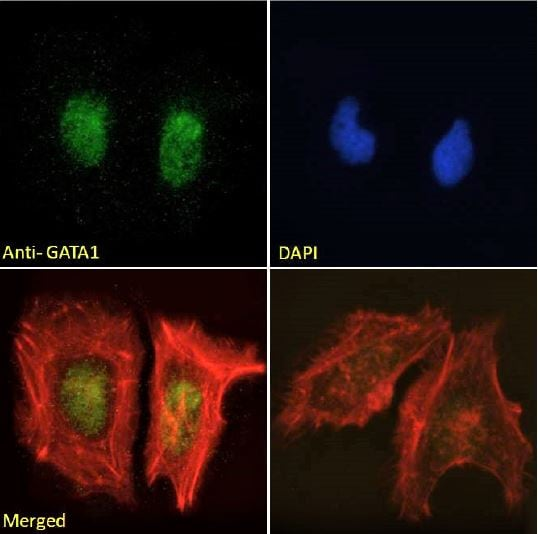Immunocytochemistry/ Immunofluorescence - Anti-GATA1 antibody (ab40847)