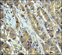 Immunohistochemistry (Formalin/PFA-fixed paraffin-embedded sections) - Anti-GSK3 alpha antibody [EP793Y] (ab40870)