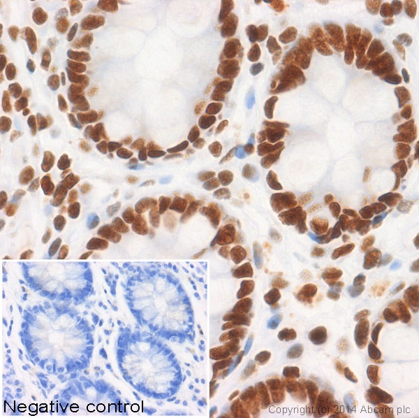 Immunohistochemistry (Formalin/PFA-fixed paraffin-embedded sections) - Anti-Histone H2B (acetyl K12) antibody [EP858Y] (ab40883)