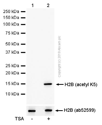 Western blot - Anti-Histone H2B (acetyl K5) antibody [EP857Y] - ChIP Grade (ab40886)