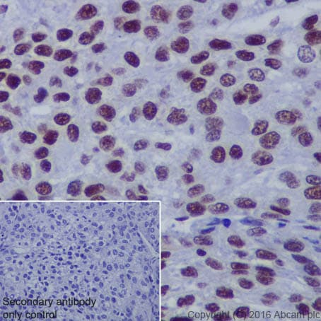 Immunohistochemistry (Formalin/PFA-fixed paraffin-embedded sections) - Anti-Histone H2B (acetyl K5) antibody [EP857Y] - ChIP Grade (ab40886)