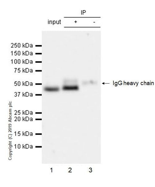Immunoprecipitation - Anti-Cyclin E2 antibody [EP454Y] (ab40890)