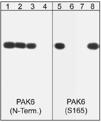 Western blot - Anti-PAK6 (phospho S165) antibody (ab41432)