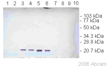 Western blot - Anti-Dengue Virus prM glycoprotein antibody [DM1] (ab41473)