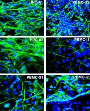 Immunocytochemistry/ Immunofluorescence - Anti-beta III Tubulin antibody (ab41489)