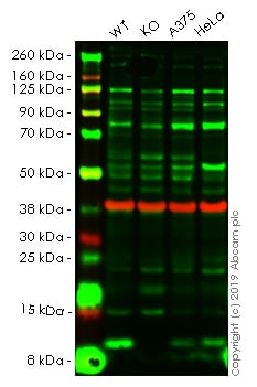 Western blot - Anti-S100A4 antibody (ab41532)