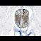 Immunohistochemistry (Formalin/PFA-fixed paraffin-embedded sections) - Anti-S100 beta antibody - Astrocyte Marker (ab41548)