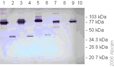 Western blot - Anti-Dengue Virus NS1 glycoprotein antibody [DN3] (ab41616)