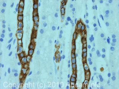 Immunohistochemistry (Formalin/PFA-fixed paraffin-embedded sections) - Anti-Cytokeratin 8 + 18 + 19 antibody [2A4] (ab41825)