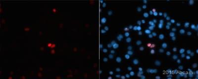 Immunocytochemistry/ Immunofluorescence - Anti-NR2F2 antibody [H7147] (ab41859)