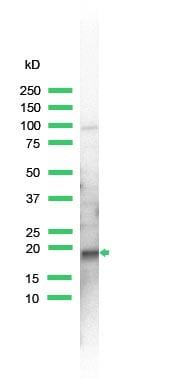 Western blot - Anti-Skp1 antibody (ab41865)