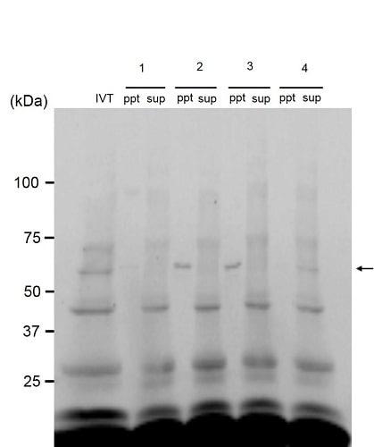 Immunoprecipitation - Anti-PPAR gamma 1+2 antibody [A3409A] - ChIP Grade (ab41928)