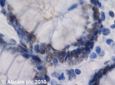 Immunohistochemistry (Formalin/PFA-fixed paraffin-embedded sections) - Anti-RIP140 antibody (ab42126)